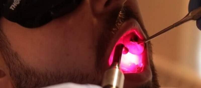 laserowa terapia nowotworów