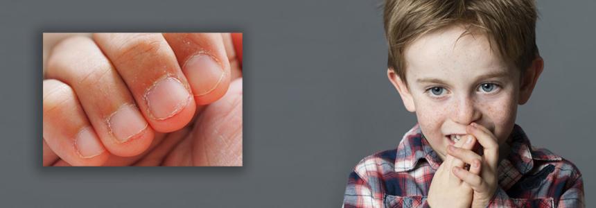 obgryzanie paznokci u dzieci