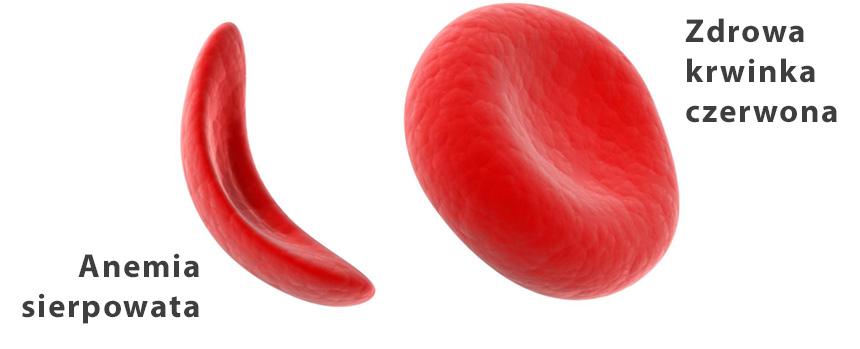 krwinka czerwona z anemią sierpowatą