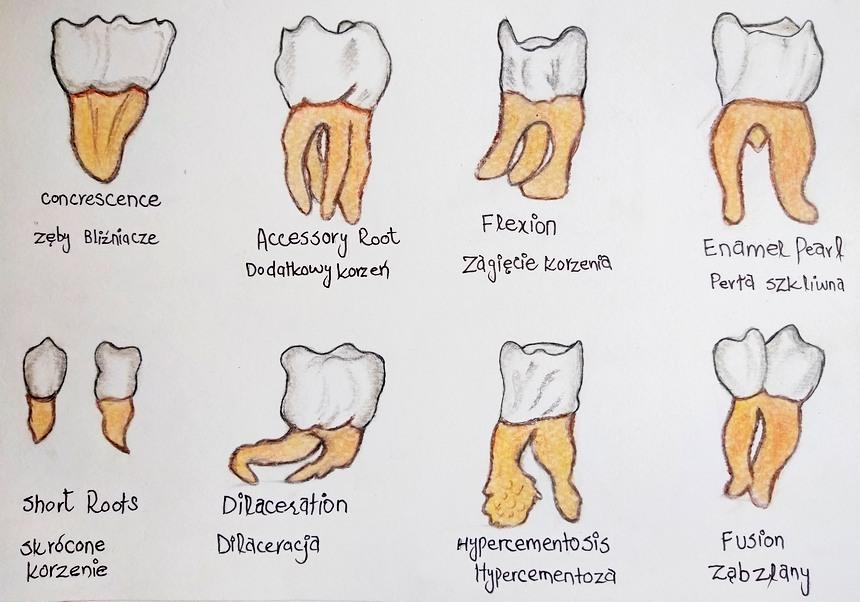Nieprawidłowości kształtu zębów