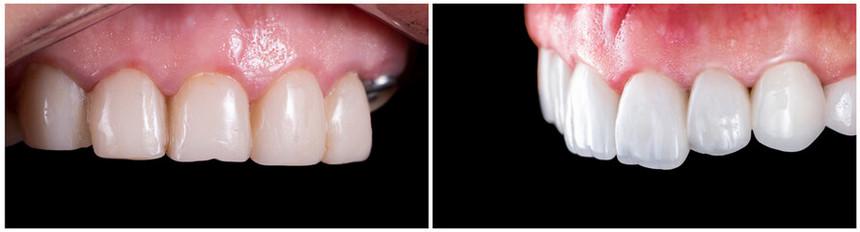 licówki przed i po
