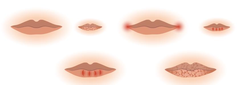 zajady, infekcje ust